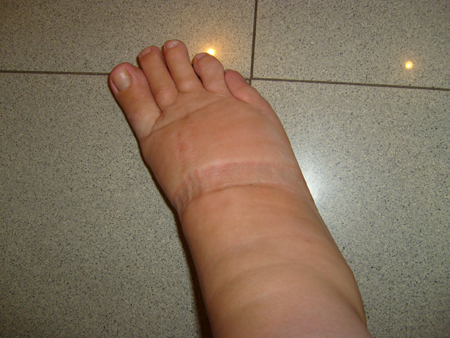 foot after salsa class